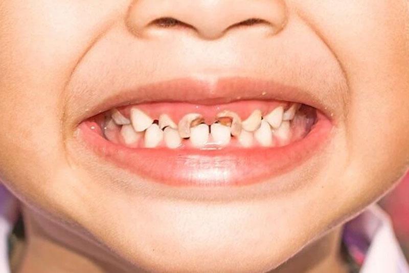 Súc miệng nước muối quá nhiều có thể làm mòn men răng của trẻ, tăng khả năng mắc bệnh răng miệng