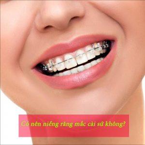 Có nên niềng răng mắc cài sứ không?