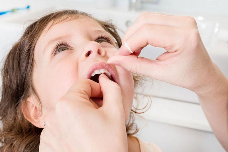 Sử dụng chỉ nha khoa cho trẻ em: Bước vệ sinh cơ bản không nên bỏ qua