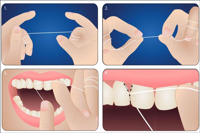 Thực hiện làm sạch răng đúng cách cho bé bằng chỉ nha khoa