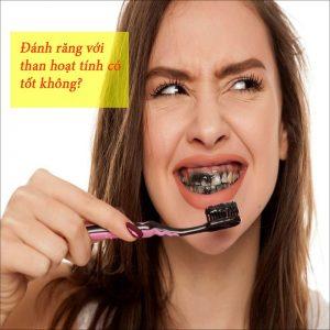 Đánh răng với than hoạt tính có tốt không?