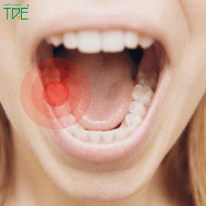 Đau răng hàm dưới: Nguyên nhân và cách điều trị nhanh chóng