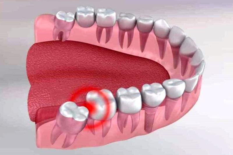 Đau răng hàm dưới trong cùng có thể do mọc răng khôn