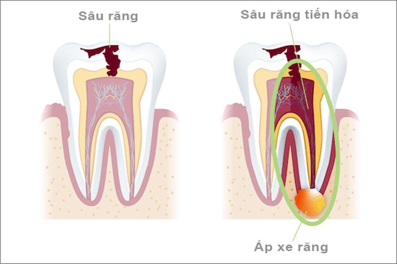 Sâu răng, áp xe răng gây ra tình trạng đau răng hàm dưới kéo dài