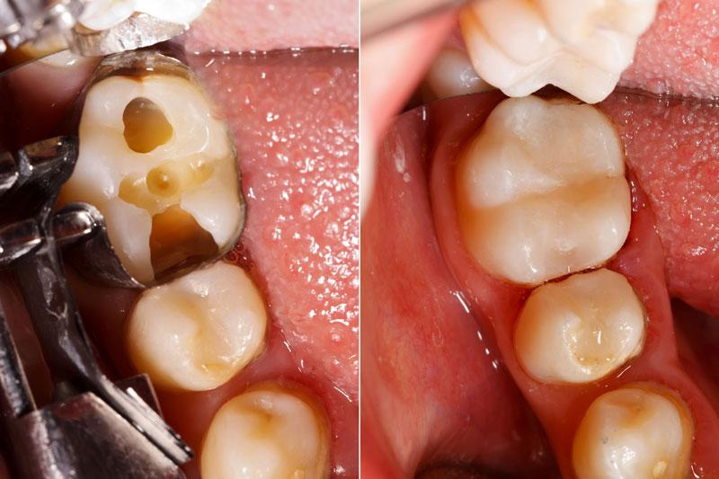 Điều trị sâu răng ngăn ngừa viêm tủy, chết tủy gây đau nhức răng