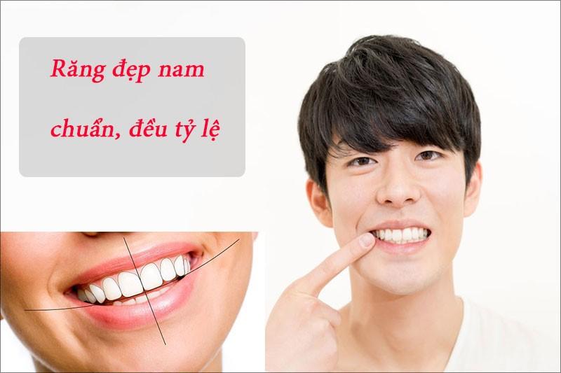 Răng đẹp với đường cung chuẩn, hình dáng đẹp tự nhiên