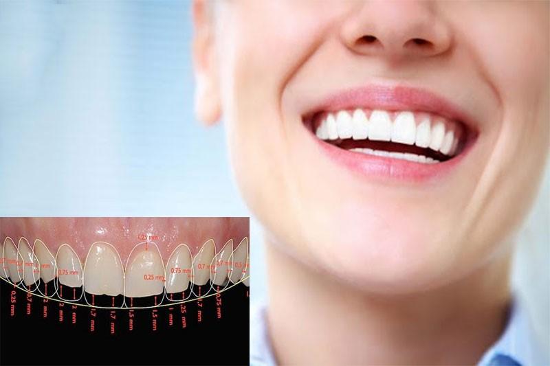Răng đẹp nam có kích thước chuẩn, hài hòa, trắng sáng tự nhiên