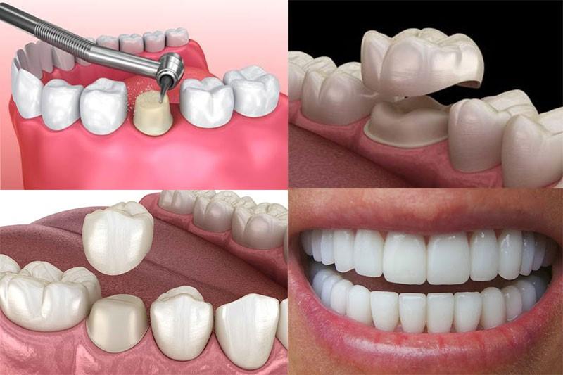 Bọc răng sứ thẩm mỹ mang lại cho bạn hàm răng chuẩn đẹp, đầy sức hút