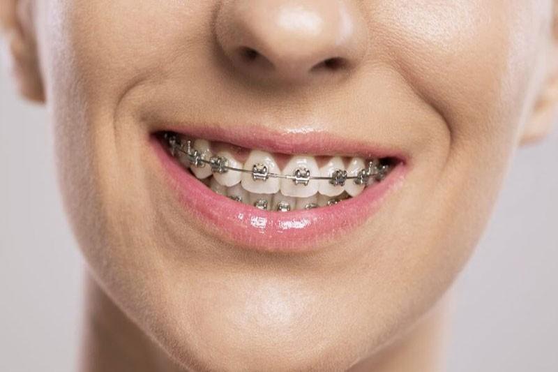 Niềng răng an toàn, sở hữu ngay hàm răng đẹp tiết kiệm chi phí