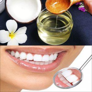 5 cách lấy cao răng bằng dầu dừa siêu hiệu quả