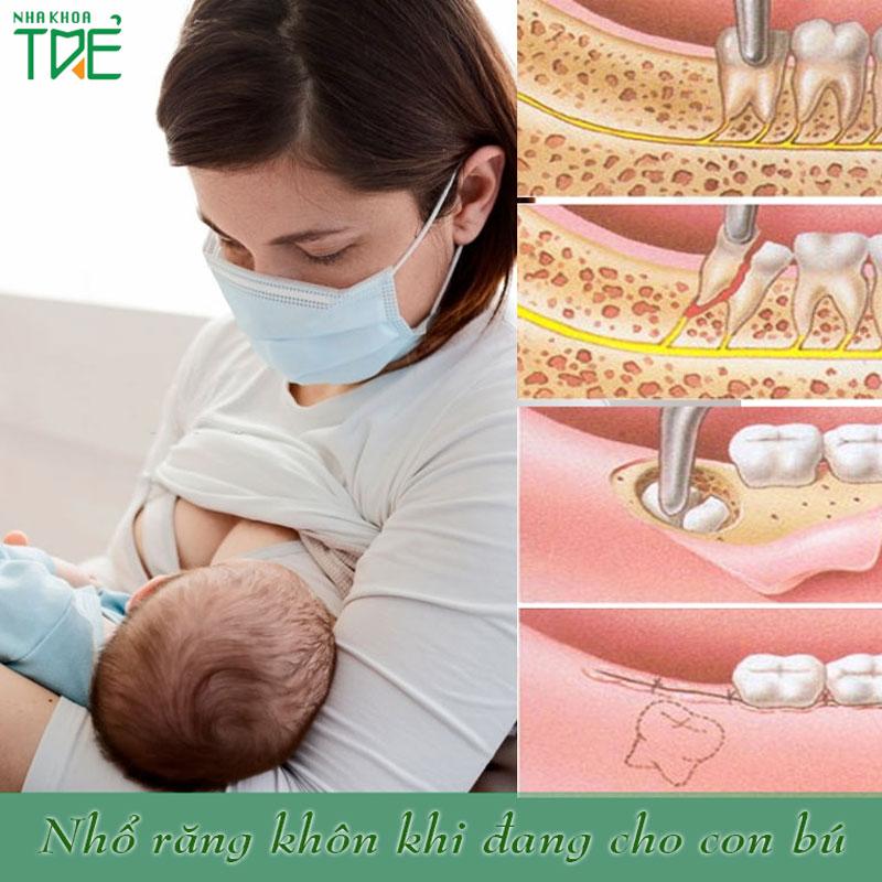Nhổ răng khôn khi đang cho con bú có ảnh hưởng gì không?