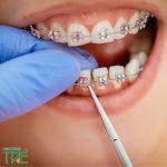 Những thay đổi trong giai đoạn niềng răng 3 tháng