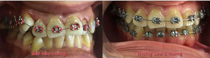 Niềng răng 3 tháng đã có nhiều thay đổi rõ rệt