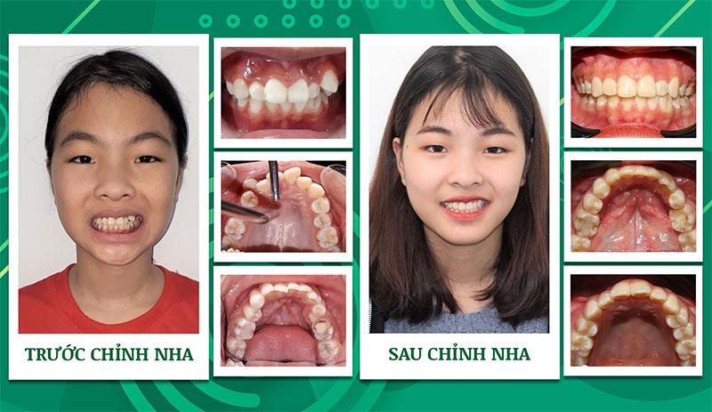 Kết quả niềng răng khấp khểnh tại Nha khoa Trẻ
