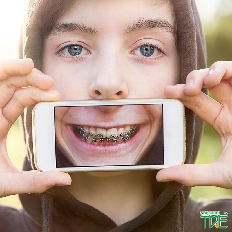 Niềng răng có bị chạy lại không?