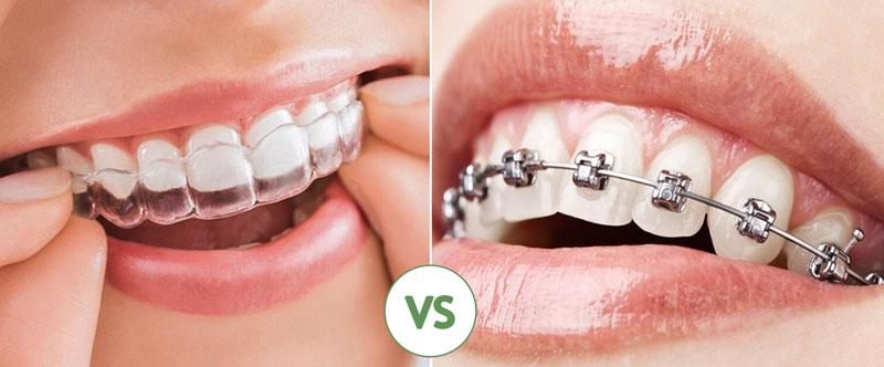Hai phương pháp niềng răng chỉnh nha phổ biến