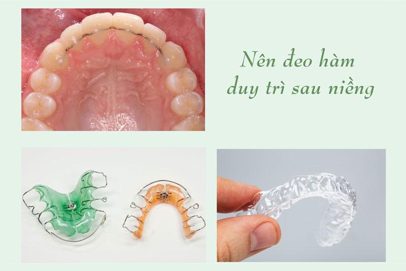 Đeo hàm duy trì sau chỉnh nha để ngăn răng chạy sai vị trí