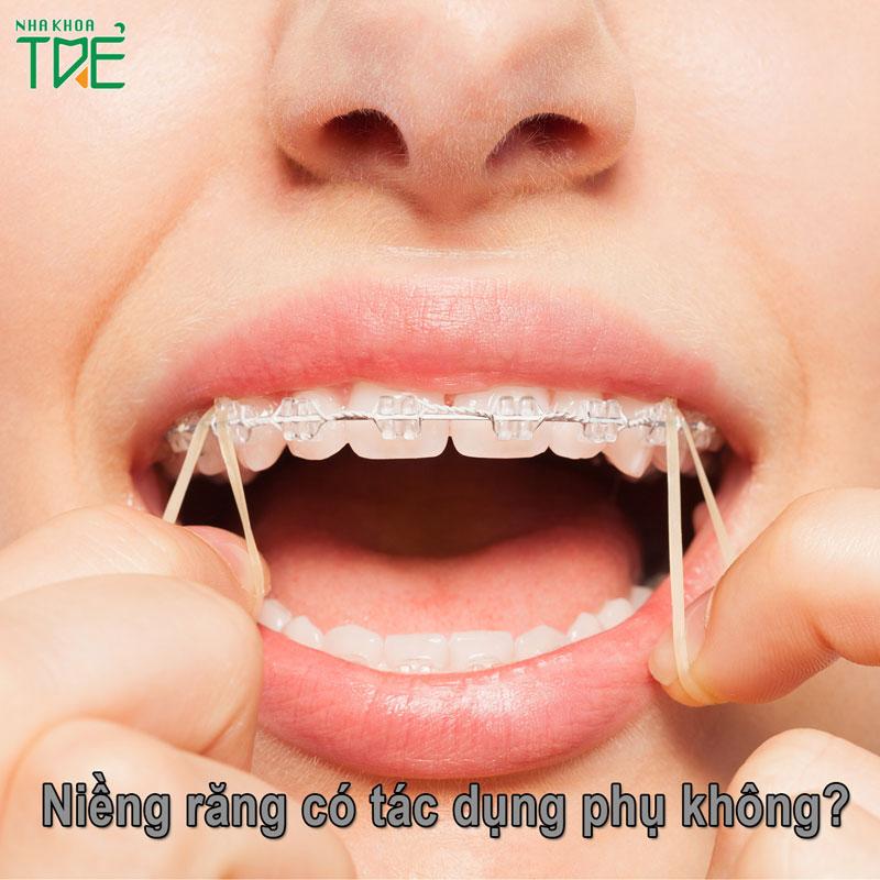 Niềng răng có tác dụng phụ không?