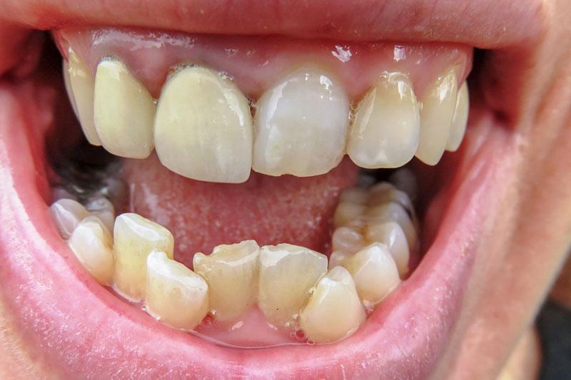 Niềng răng sai cách dẫn đến răng lệch lạc nghiêm trọng hơn