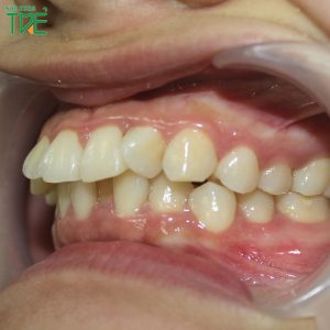 Răng hô là gì? Hàm răng hô khắc phục như thế nào?