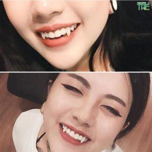 Răng nanh đẹp hay xấu? Làm răng nanh dài ra như thế nào?