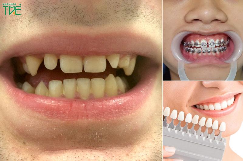 Răng thưa nên niềng hay bọc răng sứ?
