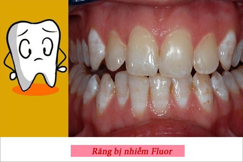 Dư thừa Fluor sẽ gây hại cho men răng và sức khỏe cơ thể