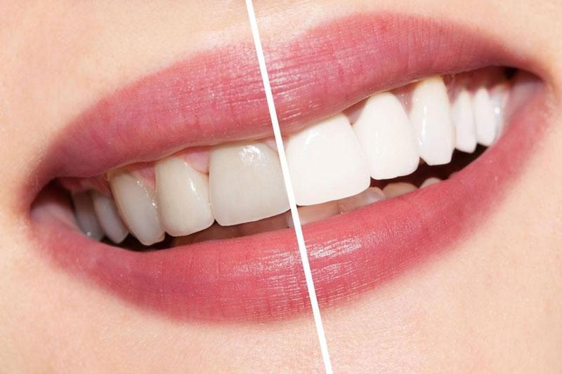 Súc miệng nước muối làm sạch mảng bám, giúp răng trắng sớm hơn