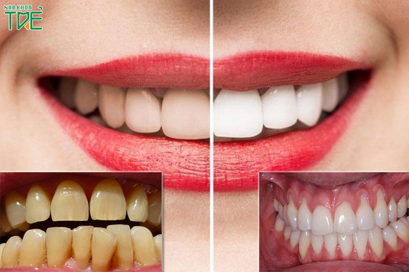 Tẩy trắng răng có làm tụt lợi không?