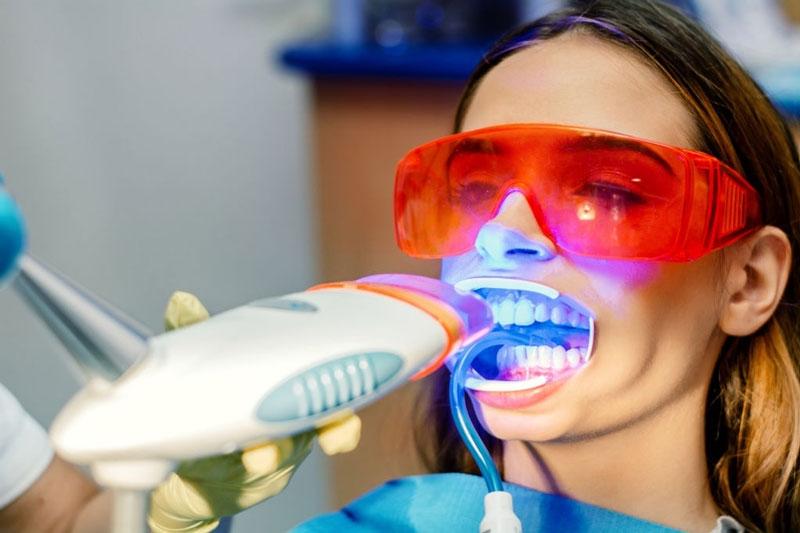 Thực hiện tẩy trắng răng Laser an toàn, không tác đông nướu lợi