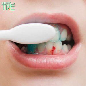 Trẻ 3 tuổi bị chảy máu chân răng có nguy hiểm không?