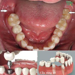 Trồng răng cấm cố định như thế nào? Đâu là giải pháp tốt nhất?