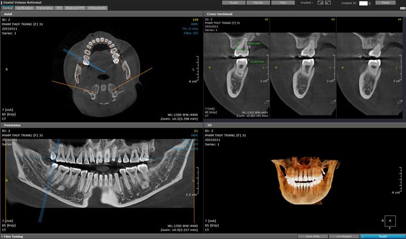 Phim X-quang răng 3 chiều cho kết quả chính xác