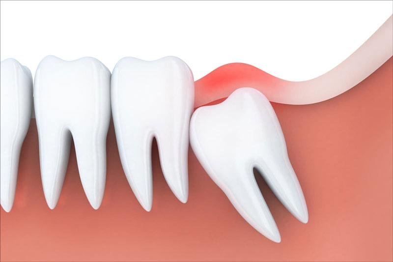 Mọc răng khôn khi đang cho con bú rất dễ bị viêm nhiễm, viêm lợi trùm