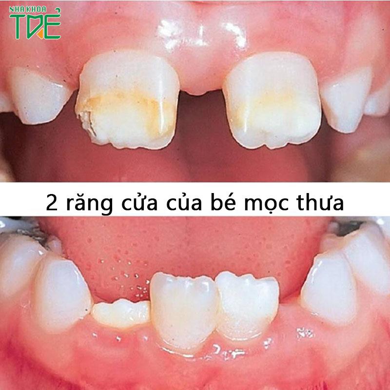 2 răng cửa của bé mọc thưa: nguyên nhân và cách khắc phục
