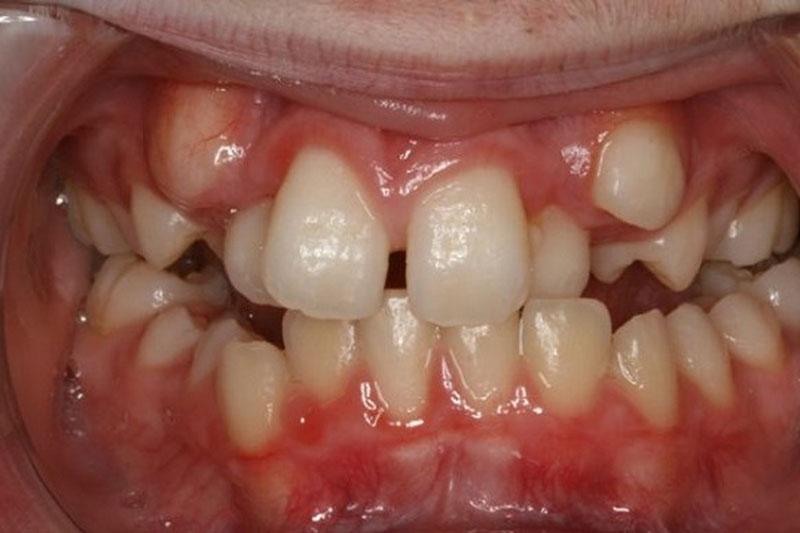 Thừa mầm răng sẽ khiến răng lệch lạc và răng cửa bị thưa