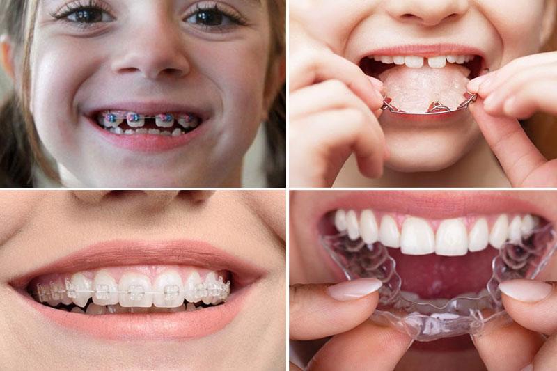 Niềng răng cho trẻ với khí cụ phù hợp sẽ mang lại kết quả cao nhất