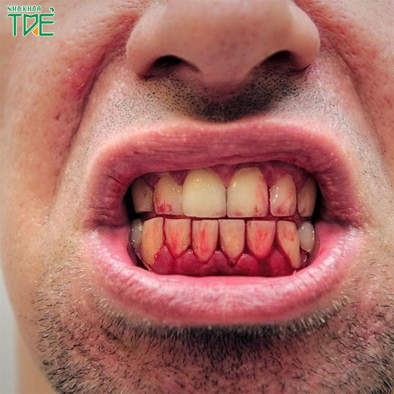Chảy máu chân răng khi ngủ dậy: Bệnh lý răng miệng không thể xem nhẹ