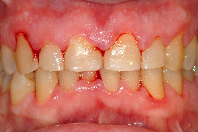 Viêm lợi là nguyên nhân chủ yếu làm chảy máu chân răng