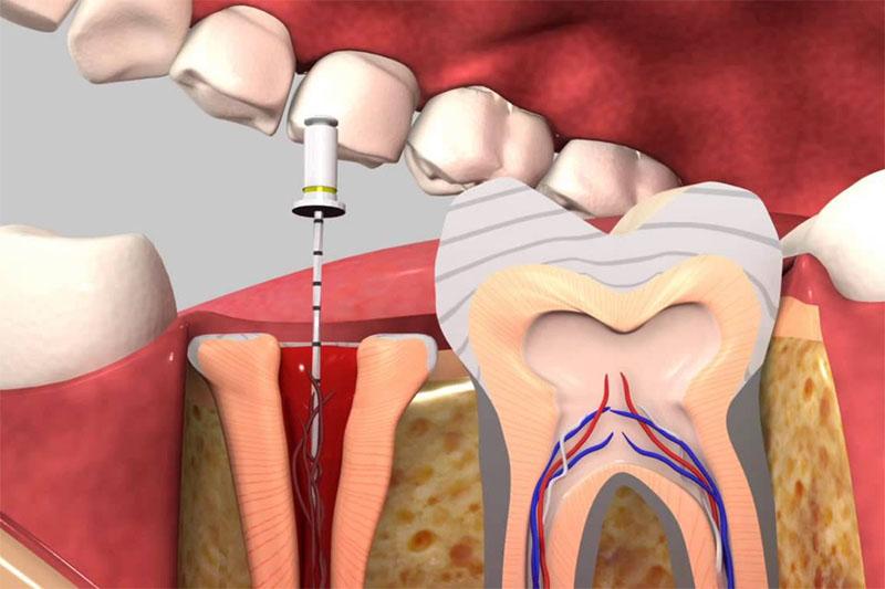 Điều trị tủy để loại bỏ viêm nhiễm gây sâu răng, viêm tủy