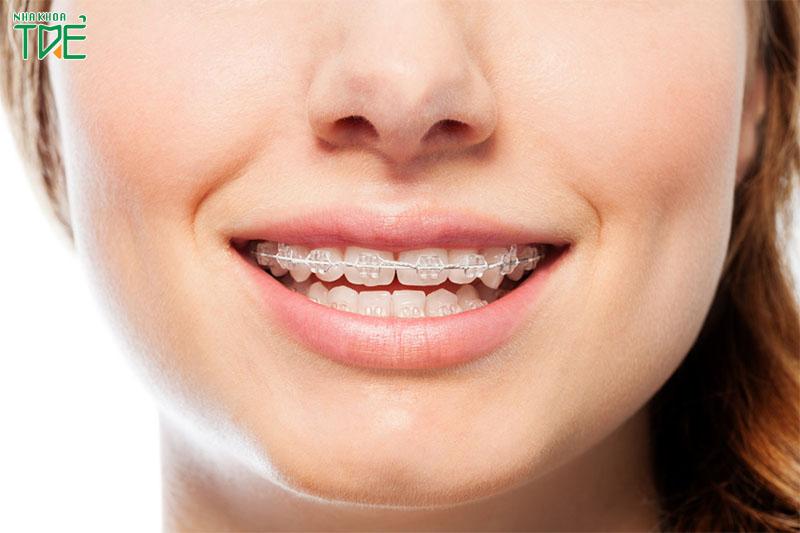 Giá niềng răng thưa hàm trên là bao nhiêu tiền?