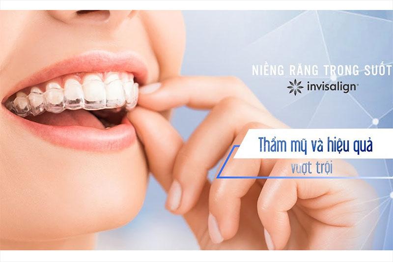 Niềng răng trong suốt mang lại hiệu quả vượt trội nên có mức chi phí khá cao