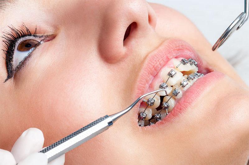 Kỹ thuật niềng răng của nha sĩ quyết định rất lớn đến kết quả chỉnh nha