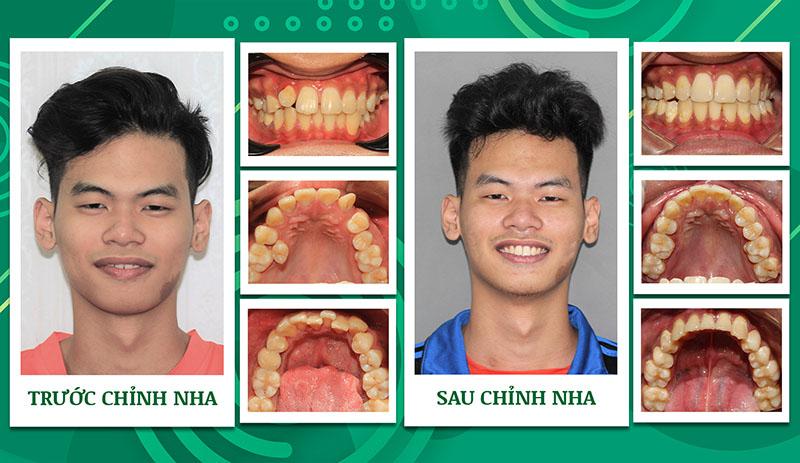 Hình ảnh kết quả niềng răng ở Nha khoa Trẻ (hiệu quả phụ thuộc vào tình trạng của từng người)