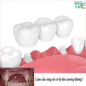 Làm cầu răng sứ có bị tiêu xương không?