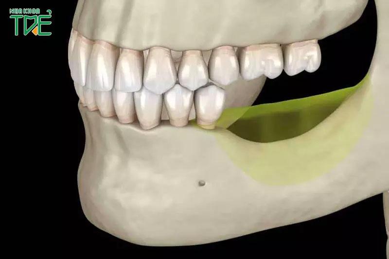 Mất răng làm giảm lực ăn nhai, làm tiêu xương hàm