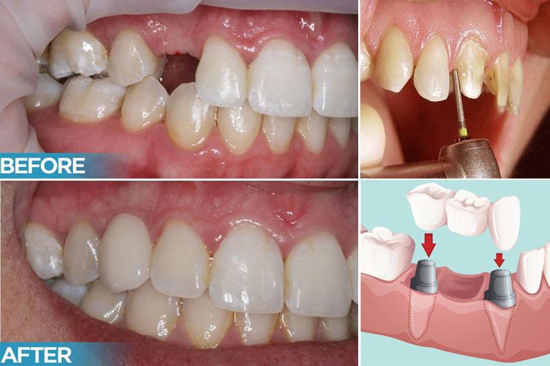 Cầu răng sứ cải thiện chức năng ăn nhai và tính thẩm mỹ hiệu quả