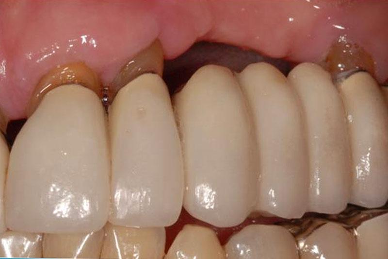Cầu răng sứ vẫn xảy ra tình trạng tiêu xương hàm