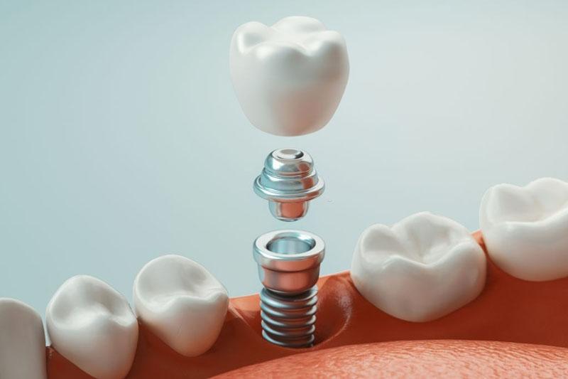 Trồng răng Implant phục hình từ chân răng, ngăn ngừa biến chứng tiêu xương