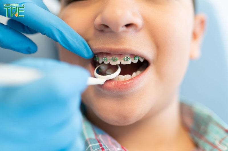 Lưu ý khi niềng răng cho trẻ: 5 vấn đề cần quan tâm hàng đầu